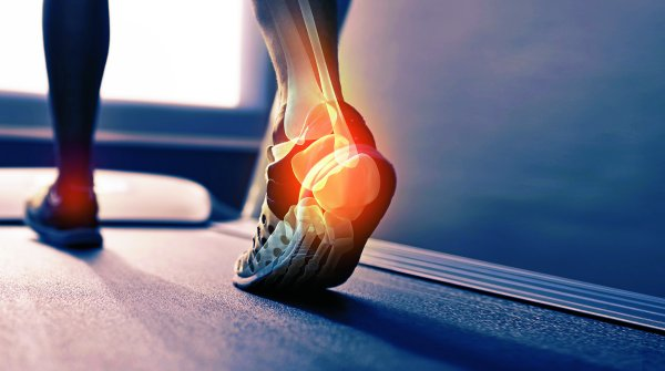 Plantar fasciitis is common among hobby runners, but also professional athletes.